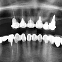 EL Clinical Study - February 2015 - How to combine bone stability and aesthetic benefits through innovative implant design Treatment of a 65-year-old patient