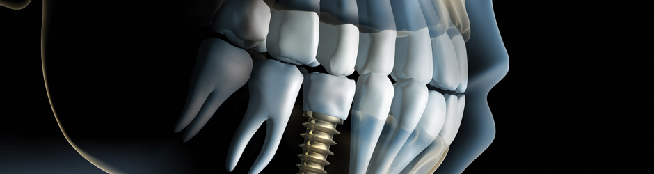 Dental implant supplier | C-Tech Implants | Dental Implants and Dental Equipment