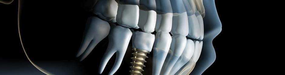 Fornitori Impianti Dentali | C-Tech Implants | Forniture e Impianti Dentali