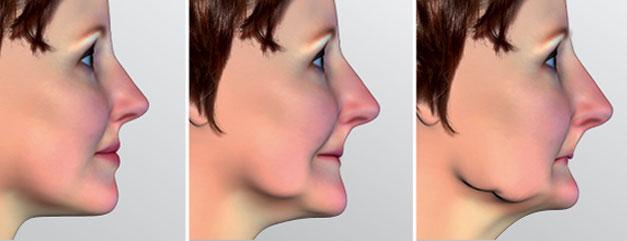 Perdita Denti | C-Tech Implant | Implantologia dentale